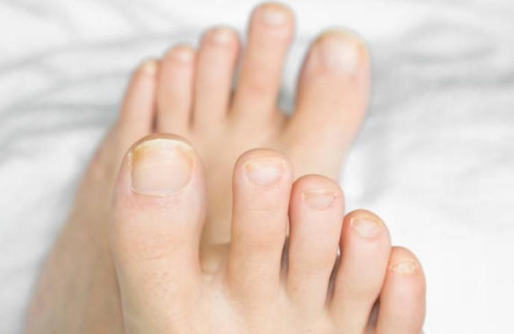 Грибок ногти